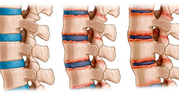 Артрит – воспаление суставов