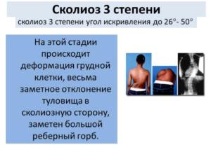 3 степень–отклонениена 26-50 градусов