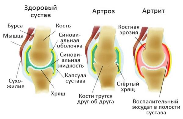 Часто артрит возникает на фоне артроза
