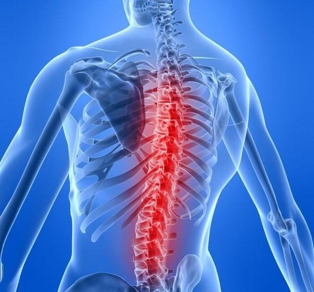 Одной из причин развития гидромиелии являются травмы позвоночника