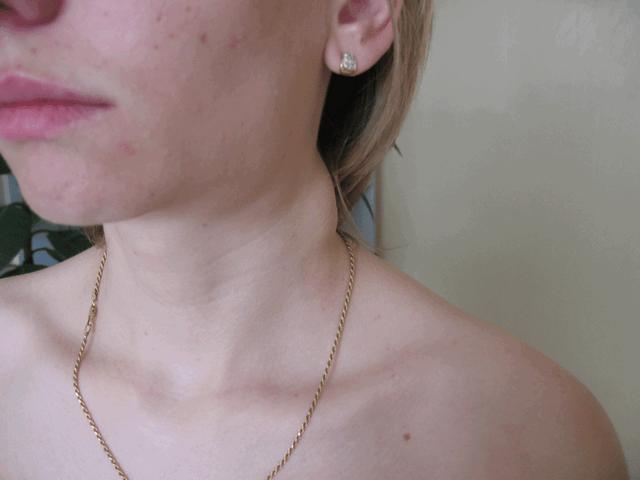Симптом гидромиелии – увеличение лимфоузлов