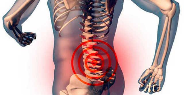 Основным симптомом начала развития дегенеративно-дистрофических изменений является сильная боль, которая может отдавать в ноги