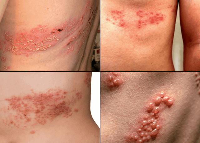 Опоясывающий лишай – прямой намек на серьёзные инфекционные заболевания