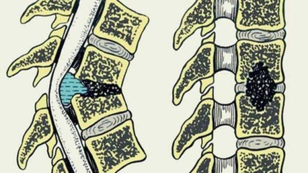 Гнойный остеомиелит приводит к тяжелым изменениям в структуре тканей позвоночника