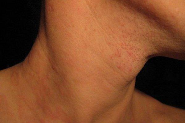 Отказаться от ношения бандажа придется тем, кто страдает от кожных заболеваний или новообразований в области шеи