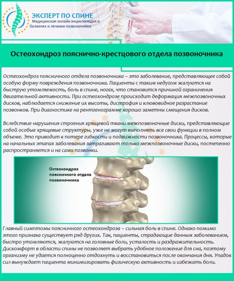 Остеохондроз пояснично крестцового отдела ванны