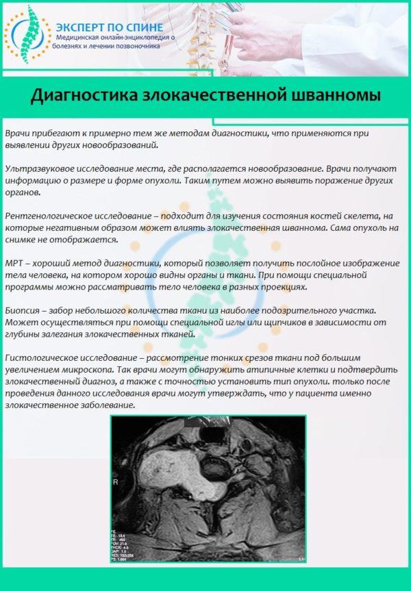 Диагностика злокачественной шванномы
