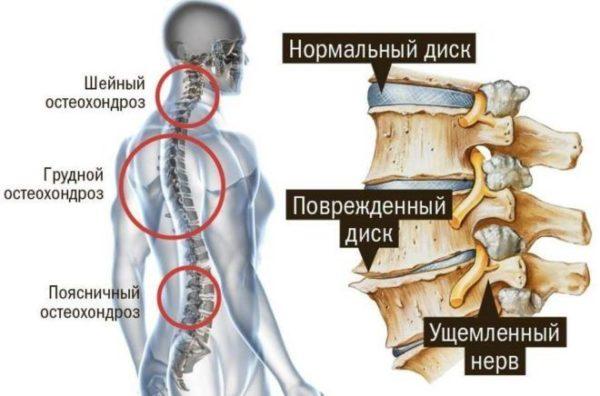 Остеохондроз характеризуется дегенеративными изменениями в межпозвоночных дисках, что приводит к защемлению нервных корешков