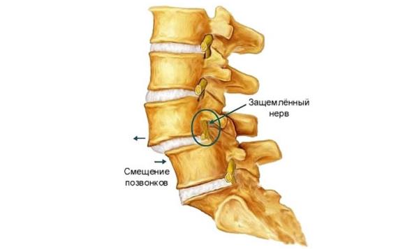 Под воздействием нагрузки может произойти смещение позвонка и защемление нерва в позвоночнике