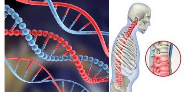 Одним из провоцирующих факторов развития спондилита является генетическая предрасположенность