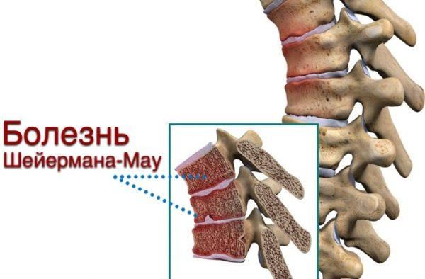 Заболевание характеризуется изменением формы позвонков и наличием вертикальных грыж