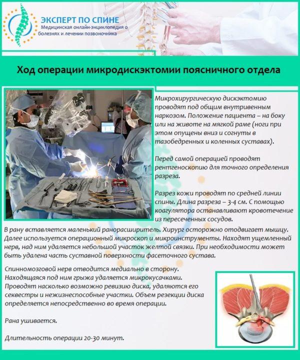 Ход операции микродискэктомии поясничного отдела