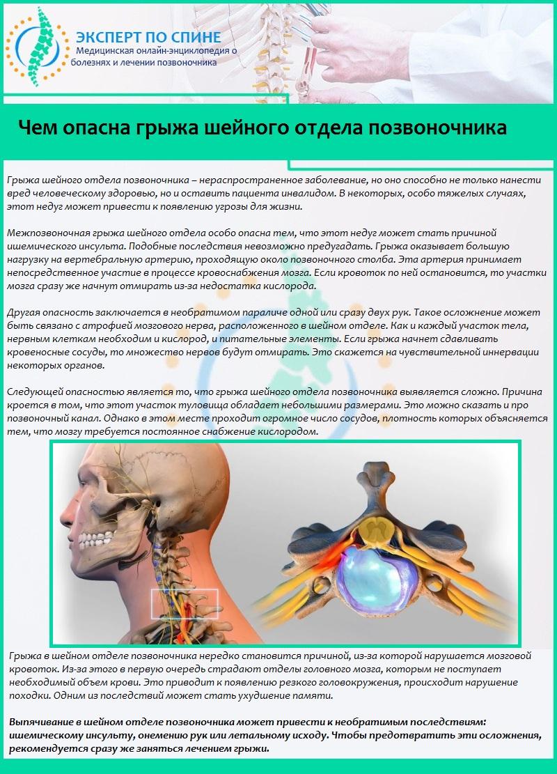 Грыжа шейного отдела позвоночника лечение инвалидность