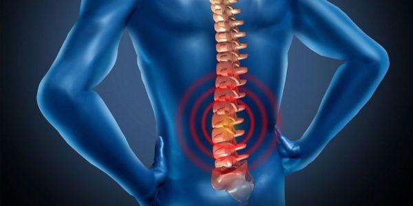 Основной причиной боли в пояснице являются патологические изменения в позвоночнике, сопровождающиеся воспалительными процессами и компрессией корешков