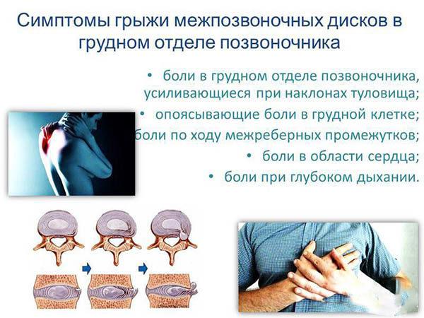Cимптомы межпозвоночной грыжи грудного отдела