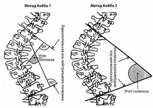 Метод Кобба