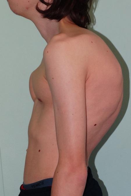 Что такое сколиотическая деформация грудного отдела позвоночника