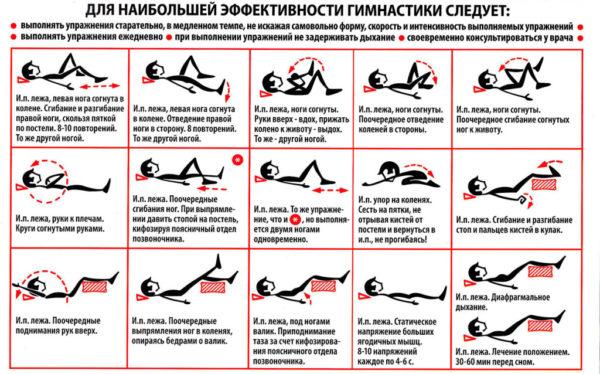 Комплекс лечебной гимнастики