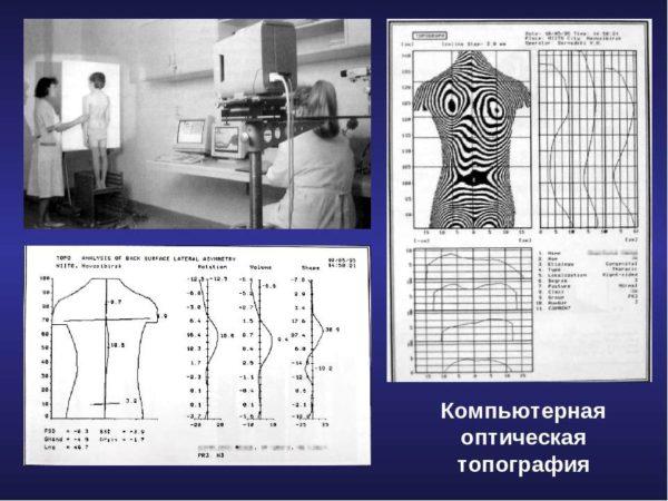 Компьютерная оптическая топография