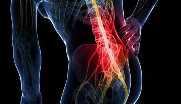 Баночный массаж противопоказан при серьезных патологиях позвоночника