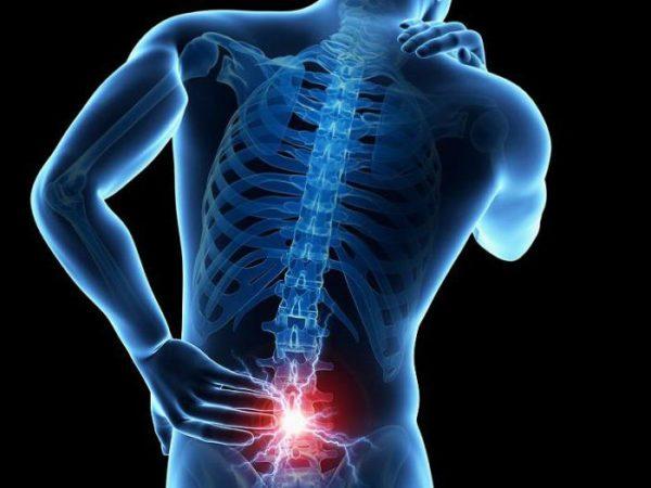 При выраженном болевом синдроме в позвоночнике бегом заниматься нельзя