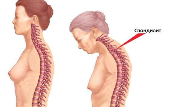 При спондилите позвоночника у больного наблюдается хроническая сутулость