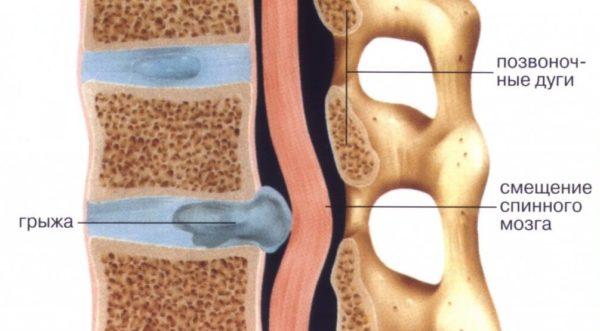 Если грыжа частично перекрывает спинномозговой канал, массаж спины проводить нельзя
