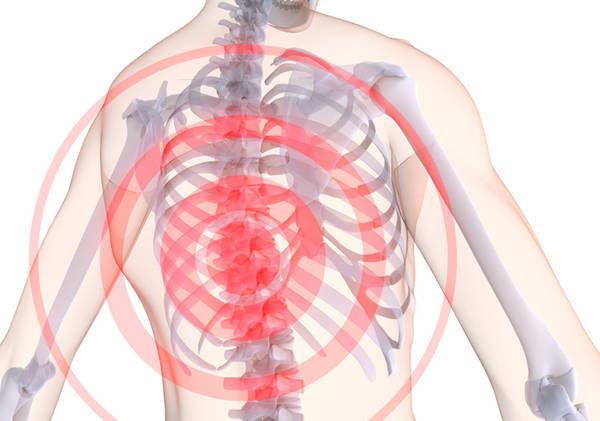 Остеохондроз грудного отдела диагностируется реже, чем остальные виды заболевания