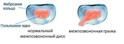 Разрыв фиброзного кольца, межпозвоночная грыжа