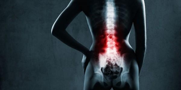 Начинать лечение артрита нужно с его первопричины