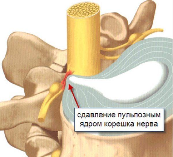 Сдавливание корешков спинномозговых нервов пульпозным ядром