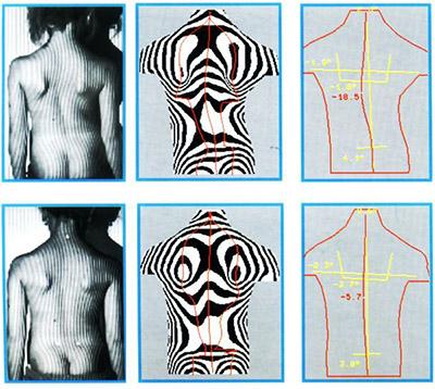 Оптическая топография