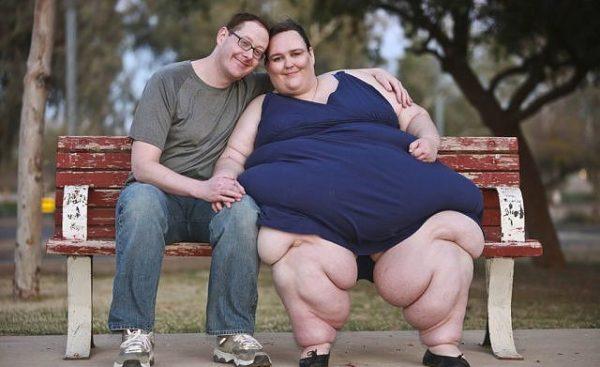 Третья степень ожирения у женщины