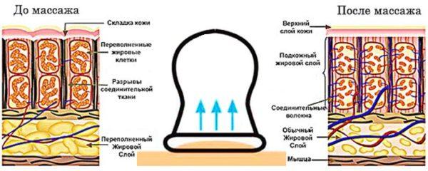 Баночный массаж оказывает воздействие не только на кожу и подкожную клетчатку, но и на структуры, расположенные более глубоко