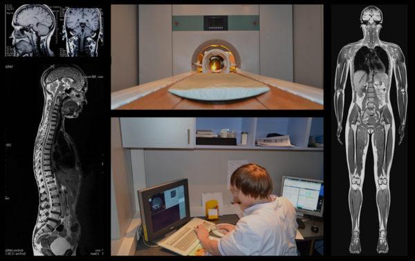 МРТ позволяет проводить исследование в любых плоскостях с учетом анатомических особенностей тела пациента, обладает рядом преимуществ перед РКТ, при исследовании мягкотканых структур и органов