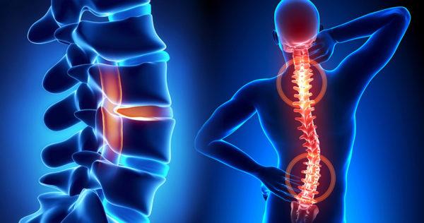 Заболевание проявляется болями в спине тянущего и острого характера