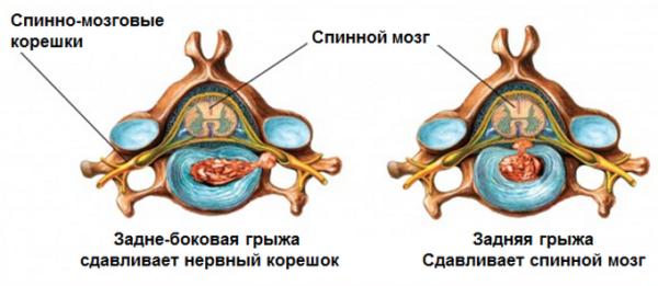Межпозвоночная грыжа может сдавливать не только отдельные нервные окончания, но и спинной мозг, если выходит в позвоночный канал