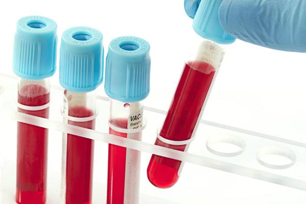 Анализ крови позволяет установить наличие аутоиммунных заболеваний