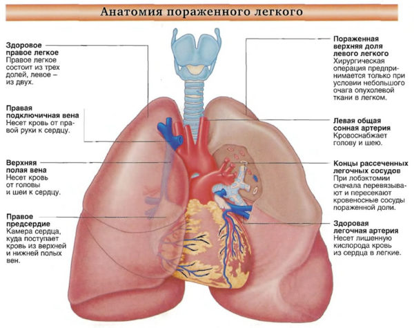 Анатомия пораженного легкого