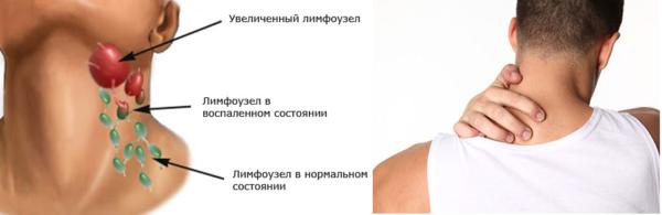 Боль при воспалении шейных лимфоузлов отдает в затылок и верхнюю часть спины
