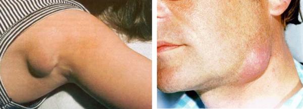 При воспалении лимфоузлов под кожей появляются подвижные болезненные бугорки
