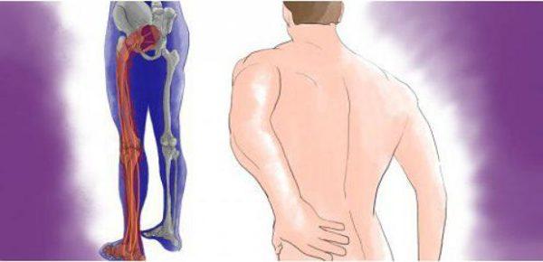 Боль может отдавать только в одну ногу или сразу в обе
