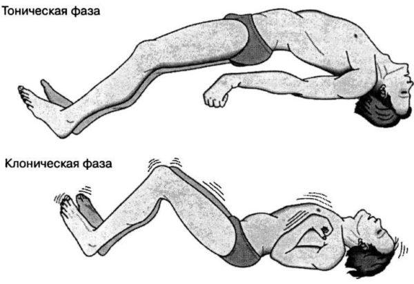 Виды мышечных судорог фото
