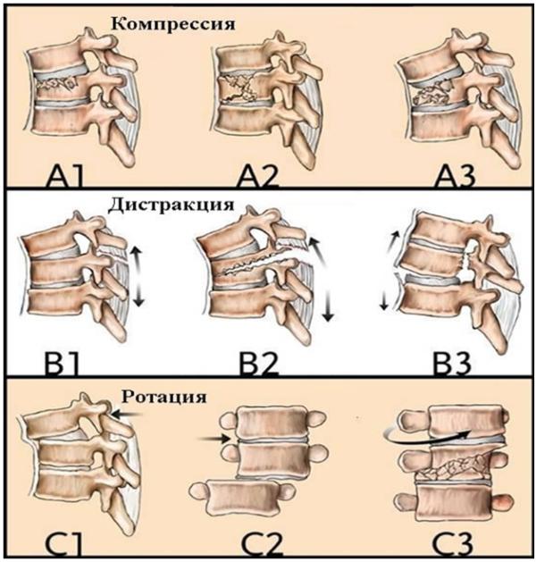 Виды перелома позвоночника