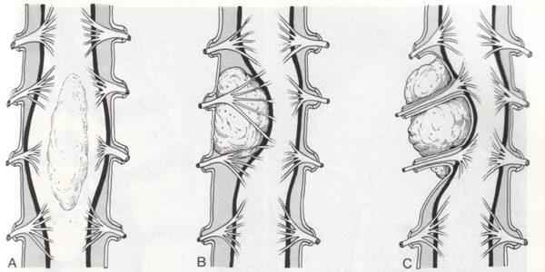 Виды периневральных кист