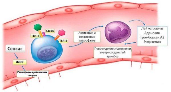 В случае отсутствия лечения спондилодисцит перетекает в сепсис