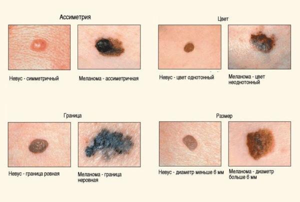Главные отличия невуса и меланомы
