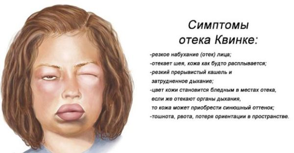 Главные симптомы отека Квинке