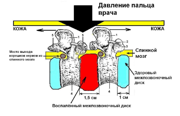 Диагностика остеохондроза методом пальпации