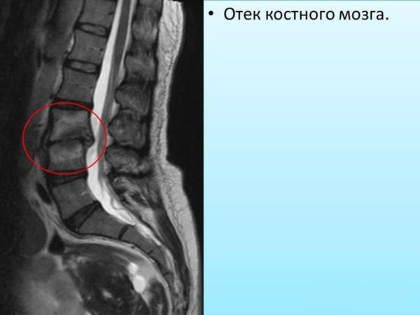 Диагностика отека костного мозга